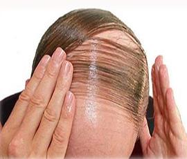 Tinh dầu chống rụng tóc, hói đầu